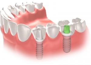 Pont-fix-sobre-implants