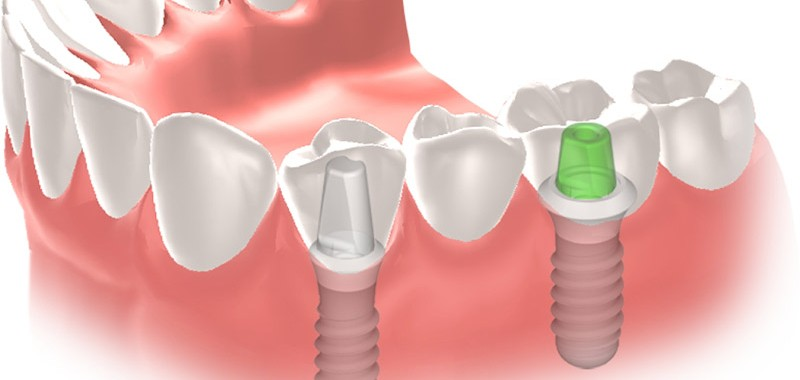 Pont-fix-sobre-implants
