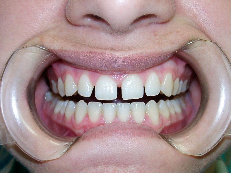 Antes de la reconstrucción dental estética