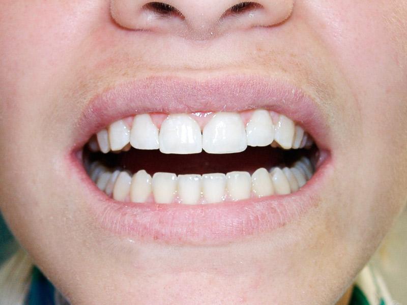 Después de la reconstrucción dental estética