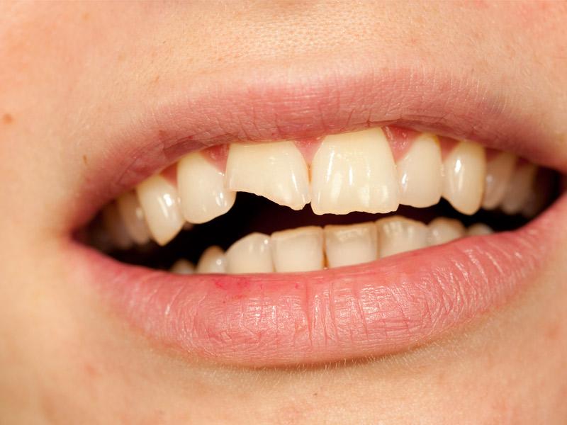Estética dental 1
