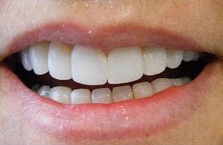 Carilles dentals després del tractament