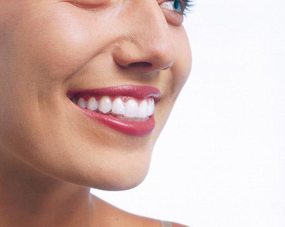Nueva técnica en ortodoncia invisible invisalign