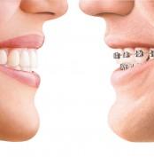 ortodoncia convencional i invisible