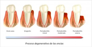 periodoncia1