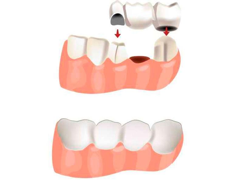 Prótesis dental fija puente