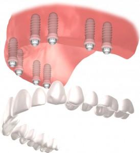 Què és una pròtesi sobre implants híbrida fixa full-arch? 0