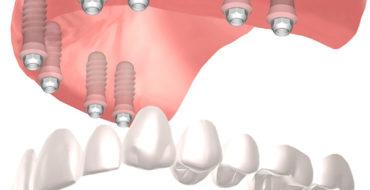 protesi-hibrida-full-arch