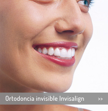 es-inicio-Ortodoncia-invisible-Invisalign