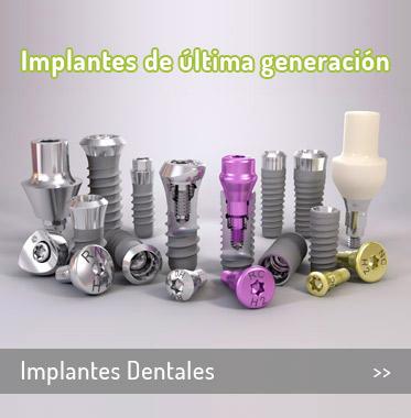 es-inicio-implantes-dentales