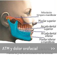 es-tratamiento-ATM-y-dolor-orofacial