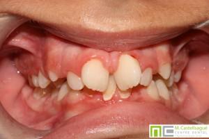 Apinyament ortodòncia granollers centre dental castellsagué 2