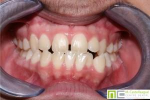 Desviació de línies ortodòncia granollers centre dental castellsagué