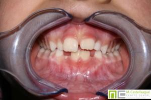 Mossegada oberta ortodòncia centre dental castellsagué
