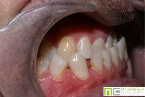 Protrusió ortodòncia granollers centre dental castellsagué