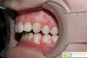 Retrusió ortodòncia granollers centre dental castellsagué