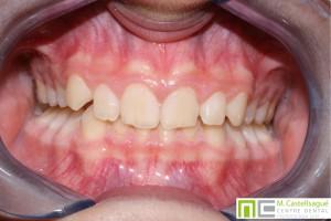 Sobremossegada ortodòncia granollers centre dental castellsagué