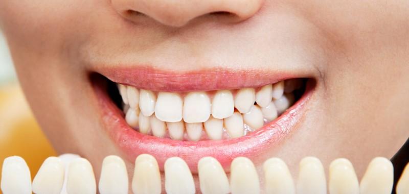 carillas dentales granollers