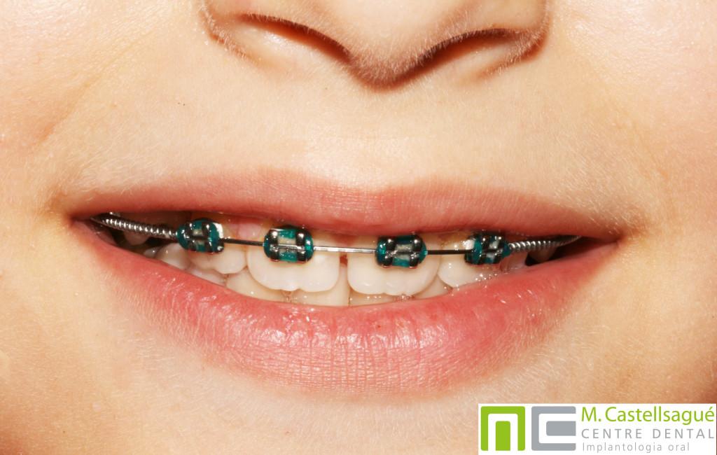 DIGAINER-ortodoncia-infantil-garnollers-castellsague
