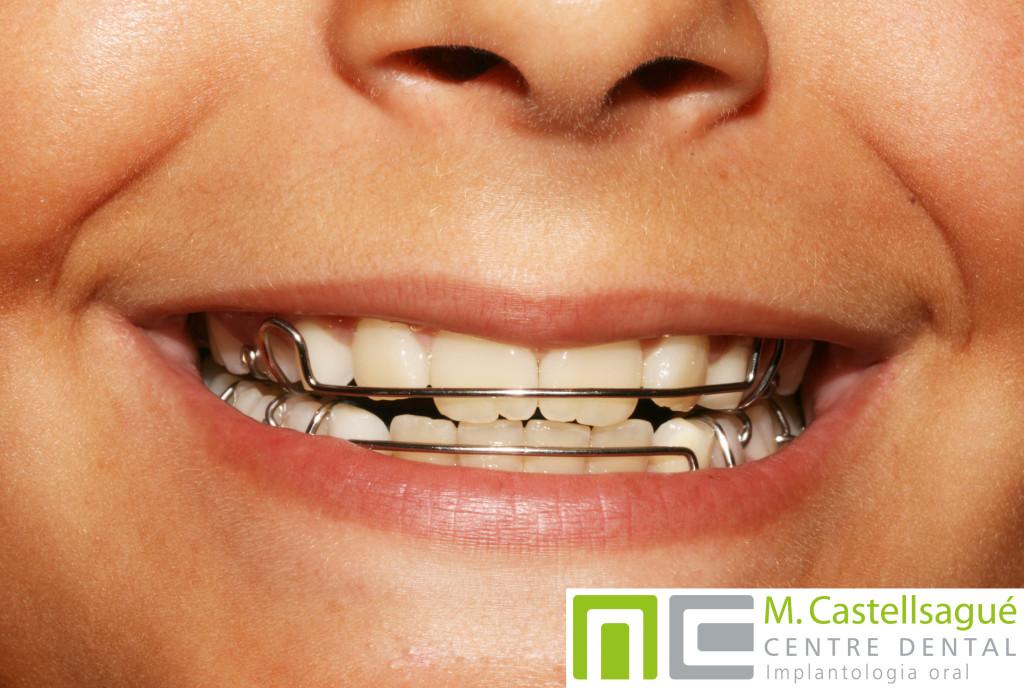 EXPANSIÓ-ortodoncia-infantil-granollers-castellsague