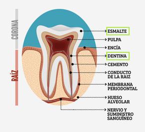 parts-dent-dentista-granollers-castellsagué-esmalte-i-dentina
