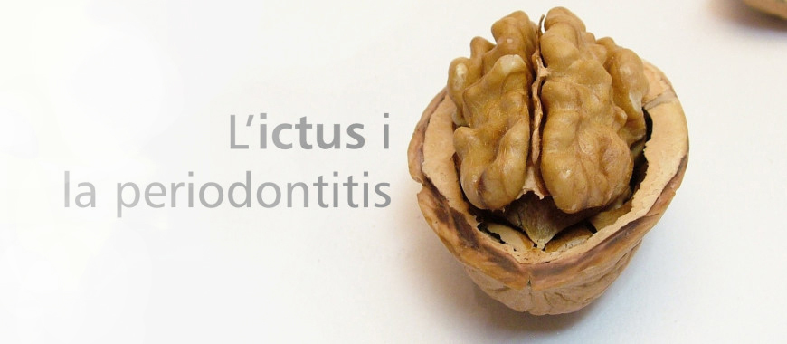 ictus-i-periodontitis-dentista-granollers-castellsague-lamarato