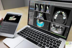 Cómo la regeneración ósea recupera el hueso perdido de la boca 2