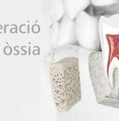 regeneració òssia membrana