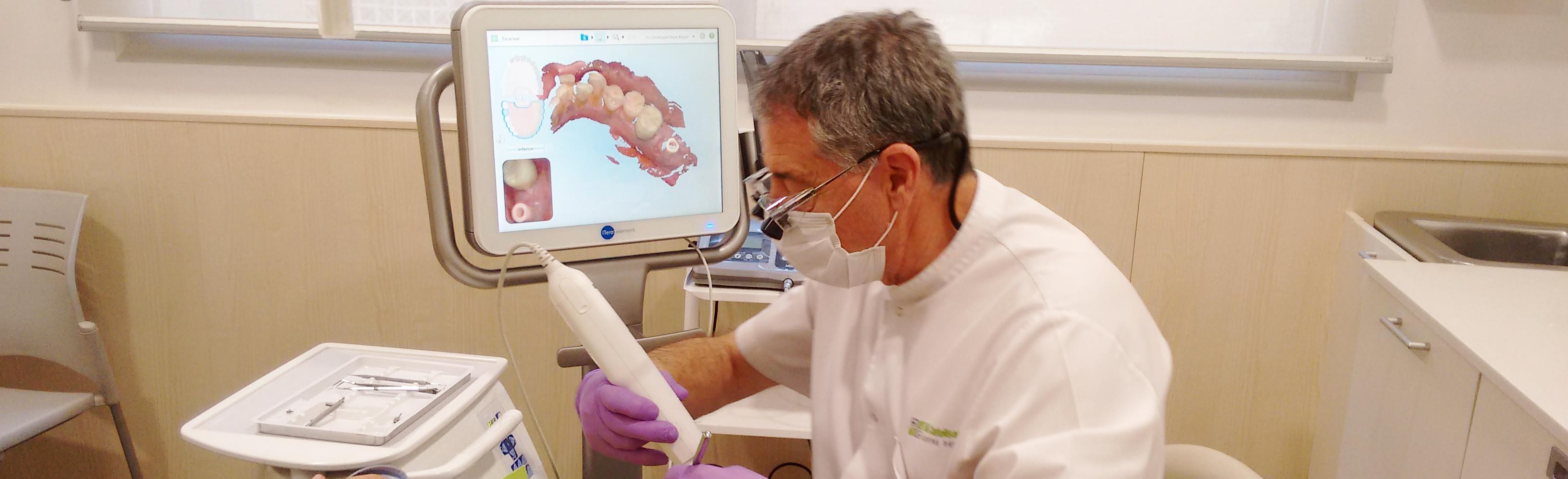 escaner-intraoral-3d-dentista-granollers-castellsgué-1-slider