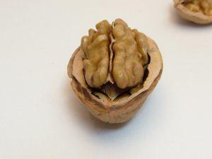 Alzheimer i periodòncia 0