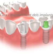 manteniment implants dentals