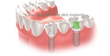 manteniment implants dentals