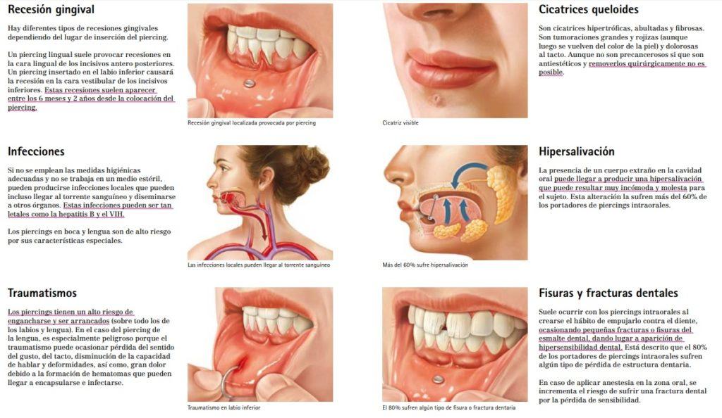 Pírcing oral: un perill per a la salut bucodental 0