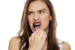 La moda del carbón activado para blanquear dientes 0