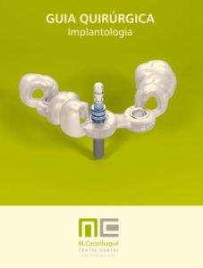 ¿Qué son las guías quirúrgicas para implantes dentales? 0
