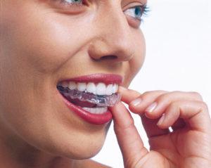 Consejos básicos a seguir durante la ortodoncia invisible 1