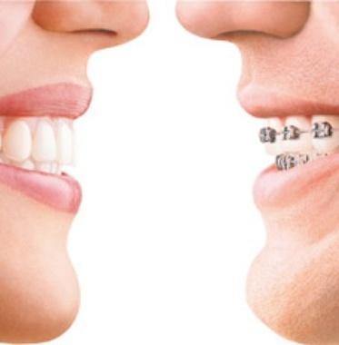 ortodoncia_home